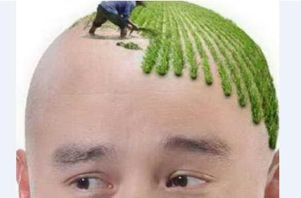 重庆华肤医院毛发移植科种植发际线效果自然吗 需要多少钱