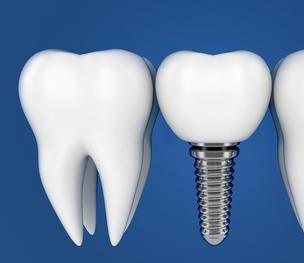 厦门亚欧口腔门诊部种植牙要多少钱 术后日常护理