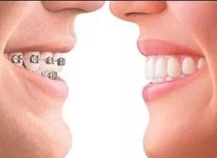 如何挑选牙齿矫正材料 福州晶美口腔门诊部地址