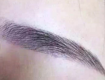 北京世熙植发专业吗 正规医院植眉毛成活率高