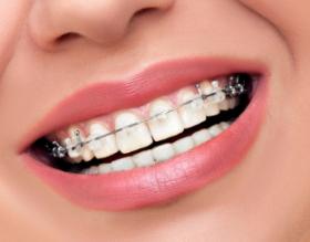 矫正牙齿去哪比较好 杭州格莱美口腔医院排名