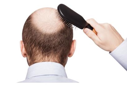 大连做头顶加密种植需要多少钱 让您摆脱秃顶的危机