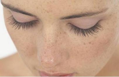 金华亚美【假期优惠】全脸祛斑 让您拥有无瑕肌肤