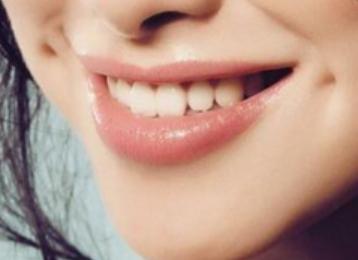 北京冠美口腔医院种植牙的三个阶段 能保持多久
