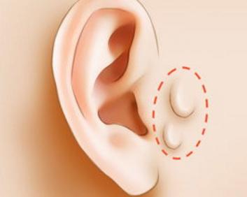 南通做副耳切除需要多少钱 附耳切除会留疤吗