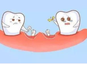 上海伊莱美口腔医院种植牙效果好吗 种出好牙