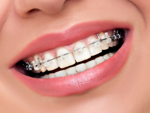 杭州瑞尔齿科门诊部牙齿矫正治疗方法 牙齿矫正后需要注意什么