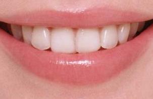 宁波尚善口腔门诊部种植牙手术效果怎么样 种植牙可以拔掉吗