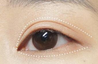 珠江整形【双眼皮手术】埋线/全切 个性设计让你双眼更迷人