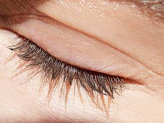 珠海韩妃【眼部整形】双眼皮整形/埋线双眼皮/提升形象