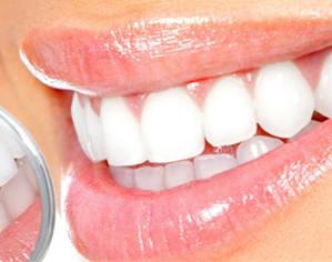 【牙齿整形】冷光美白牙/超微洁牙 牙齿立刻亮起来