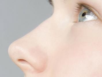 【鼻部整形】假体隆鼻/硅胶隆鼻 立体感十足