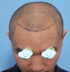 大连京城毛发移植医院发际线种植效果 专业的就是靠谱