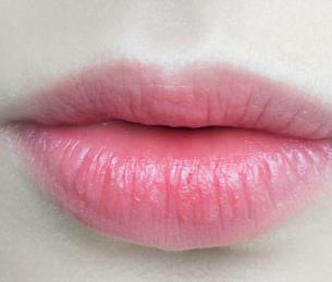 鹤壁美林苑整形医院纹唇恢复过程 让素颜更出彩