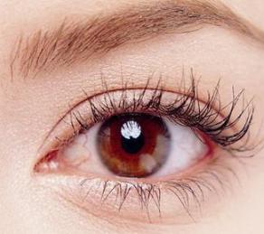 【美眼项目】埋线双眼皮/去眼袋 塑造灵动桃花眼