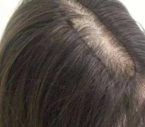 头发稀疏怎么办 杭州碧莲盛植发医院头顶加密帮您解决