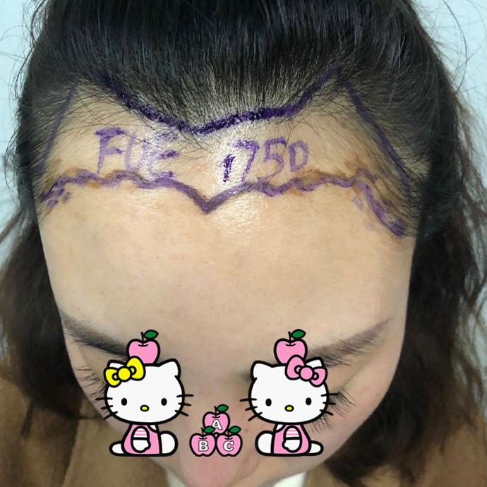 重庆碧莲盛植发医院发际线种植案例 拯救您的颜值