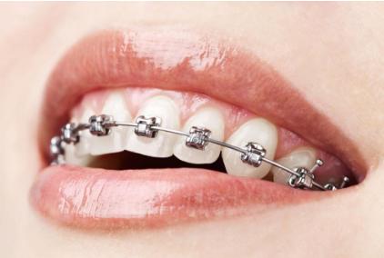 提升形象从整齐的牙齿开始 【牙齿矫正】8.5折优惠