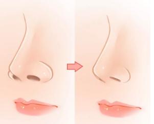 抚顺做鼻头鼻翼缩小整形需要多少钱 适合哪些人