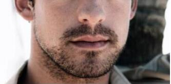 深圳北大医院植发胡须种植 一秒变MAN 植出男人味