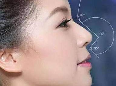 北京鼻部整形哪家好 鼻小柱延长术为颜值加分