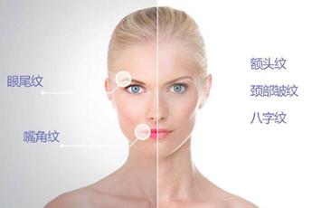 合肥刘大夫整形医院电波拉皮除皱优势 有效紧致肌肤