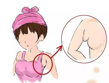 副乳在什么时候出现 温州芘丽芙整形医院副乳切除后会再长吗
