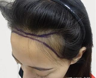 柳州贞韩植发医院发际线调整案例 改变我的猫耳朵