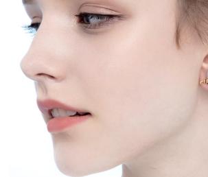 【鼻部整形】假体隆鼻/鼻翼缩小/鼻综合 面部瞬间立体化