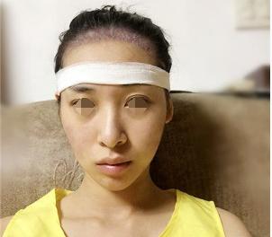 芜湖壹加壹植发医院发际线种植案例 挽救我的大额头