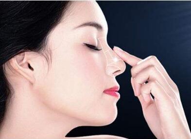 南京亚韩整形医院鼻尖整形手术的优势有哪些 风险大吗