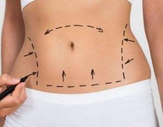 太原善美整形医院腰腹吸脂能一次做完吗  多久腰能变细