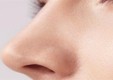 哈尔滨即美整形医院鼻尖整形的特点有哪些 有什么后遗症