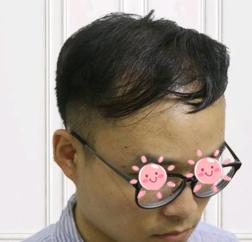 青岛海伦植发医院发际线种植效果分享 想做真的别犹豫了