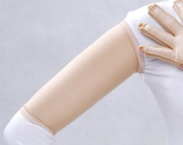 北京阳光整形医院手臂吸脂几天消肿 有什么优势呢