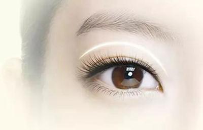 【切开双眼皮】个性设计 给你魅力双眸