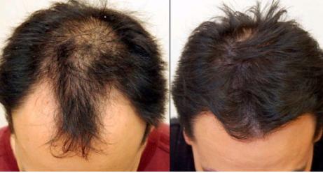 济南海峡植发医院做头发加密怎么样 有副作用吗