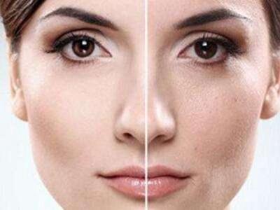 烟台刘芳整形彩光嫩肤效果能保持几年 术后要注意保养