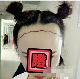 大连雍禾植发医院发际线种植案例 效果立竿见影