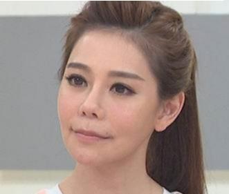 台湾女星整容30次 到头来整成面瘫