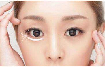 西宁绣妤整形医院激光去眼袋有哪些特点 多久能恢复呢
