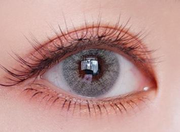 重庆超雅整形医院埋线双眼皮能撑多久 打造魅力双眸