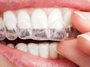 上海牙卫士口腔门诊部做牙齿矫正要拔牙吗 会导致牙龈萎缩吗