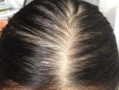 头发稀疏怎么办 南昌宏昌植发医院头发加密给你浓密秀发