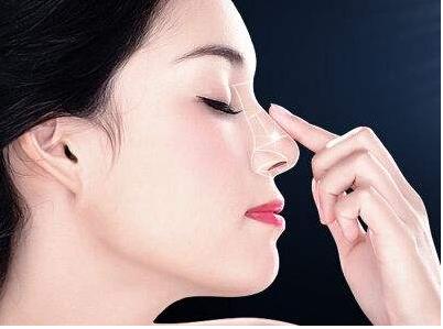烟台瑞韩整形医院做假体隆鼻手术费用多少 隆鼻影响呼吸吗