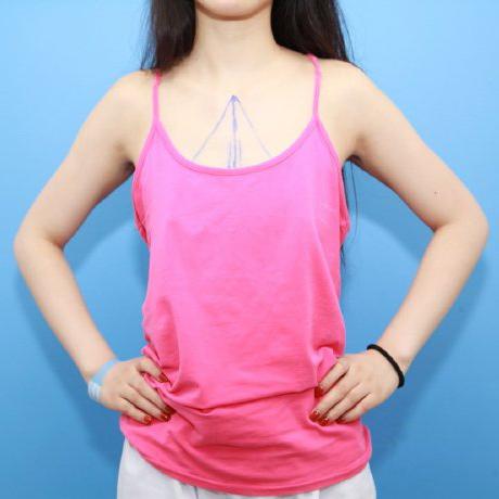 杭州维多利亚整形医院假体隆胸案例分享 找回做女人的自信