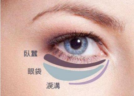 祛眼袋黑眼圈有哪些方法 福州激光去眼袋多少钱