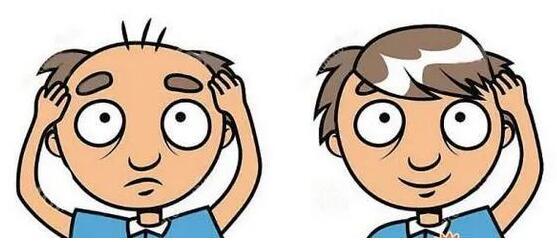 武汉华美植发医院做头发加密好不好 得要多少钱