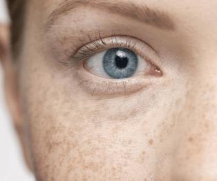 怀化华美【皮肤美容】激光祛斑/黄褐斑 远离斑点的好办法