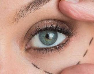 武汉恩吉娜【眼部整形】祛眼袋/双眼皮 效果持久不留痕
